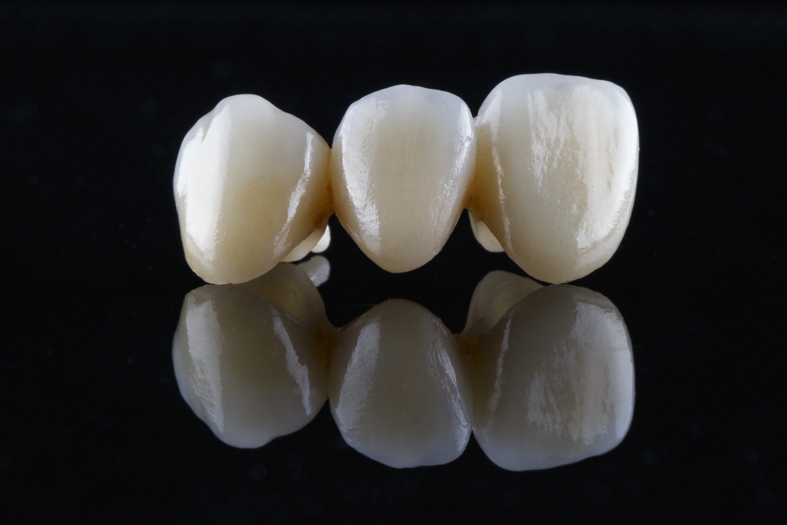 three beautiful dental crowns of natural color on black glass with reflection