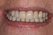 Linda-teeth-Pre